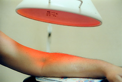 Infra red heat treatment in Cuban clinic to alleviate pain and inflammation inflammation in bones and muscles,