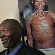 "July, 15, 2006 -John Gumiriza, is HIV positive, and proudly stands by his photo at the Rwinkwavu district hospital in Rwanda, illustrating his emaciated body before he started taking ARV's. In September of 2005 John was admitted, ""When I came here I was actually dead, there was just still breath in me."" The Clinton Foundation is working in partnership with Dr. Paul Farmer's Partners in Health to provide ARV's at reduced cost to HIV positive patients worldwide. Photo by Evelyn Hockstein"