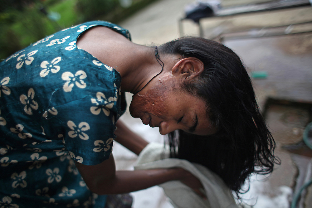 Burn - Morning Routine - Sunita Mahato, 16, dries her hair at the Disabled Newlife Centre in Kathmandu, Nepal, which offers free room, board and schooling for underprivileged children with disabilities, many of whom are burn victims. As a toddler, Mahato suffered burns to her chest, stomach, thighs and face after crawling into a cooking fire.