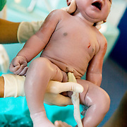 Milan, Italy, August 22, 2008. San Paolo Hospital. First cry of a newborn baby girl of Srilankan parents living in Italy.