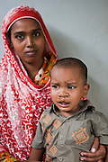Asma and her 2 year old son, Imran, wait to have a check up after a cleft palate operation at the IFB Chuandanga Hospital in the western region of Bangladesh. .Impact Foundation Bangladesh (IFB) provide care, support and treatment to people with disabilities in Bangladesh.