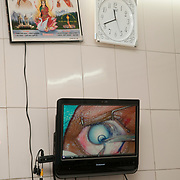 India, Bihar. Mastichak. Akhand Jyoti Eye Hospital. Operating theatre - video screen showing cataract operation.