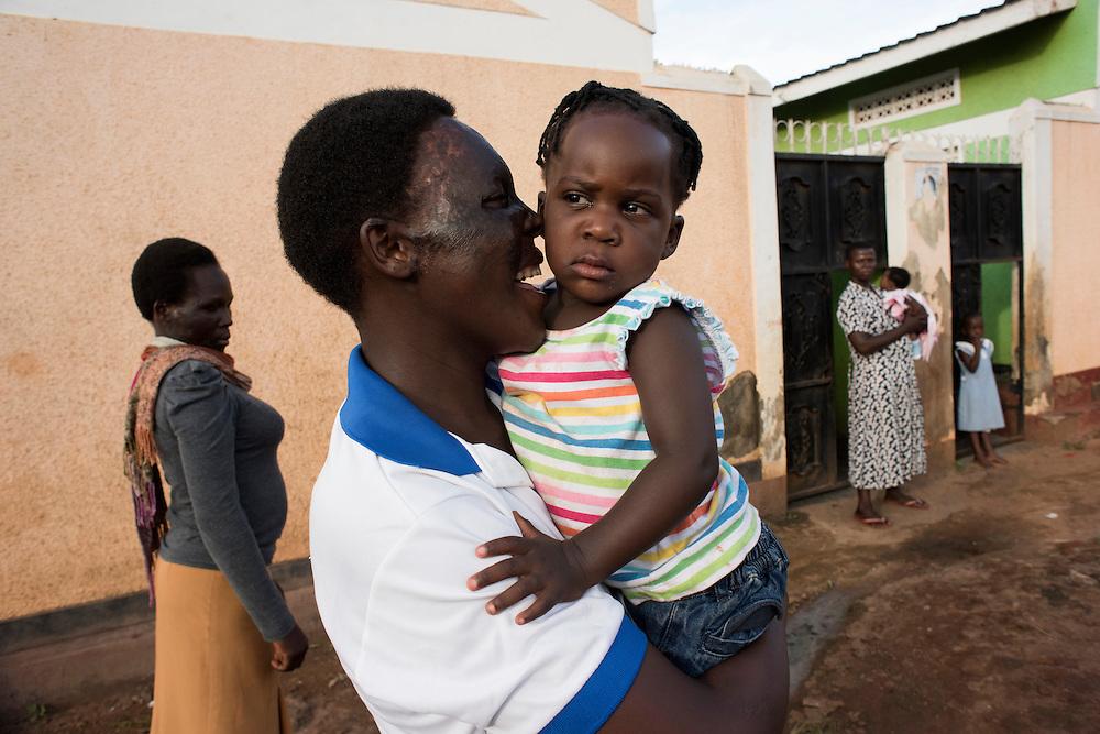 Lydia - Acid attack survivors in Uganda.
