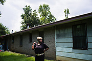 "LOWNDES COUNTY, AL – JULY 10, 2017: Ruby Dee Rudolph, 66, stand over the site where her septic tank is slowly sinking unevenly into the ground. ""Late at night, you can smell it,"" Rudolph said. ""I would have thought by now these systems would have been fixed, but they're not.""<br /> <br /> A recent study conducted by Baylor University suggests that nearly one 1 in 3 people in Lowndes County have hookworm, a parasite normally found in poor, developing countries. Below ground septic tanks are common in Lowndes, but due to the chalky clay soil throughout much of the Black Belt, septic tanks are prone to backing up into people's homes during heavy rains. With failing or absent municipal sewage systems in the county, many families choose to live with open, above ground sewer systems made from PVC pipe, which pump raw sewage into nearby streams or open land."