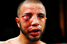 Nasty boxing injuries