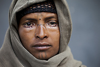 Girmi Goba, Ethiopia 2014. Azmera Tadessie, 25, had bilateral lower lid trachiasis surgery. After surgery the eyelashes are now outturned and her sight has been saved.