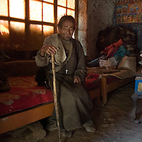 Puksung 57 years old, is a Tibetan man how has been affected for years by the Kashin-Beck Disease, in the small community of Narme, in the Lhasa river valley. Tibet, China. April 14, 2007. Photo: Bernardo De Niz