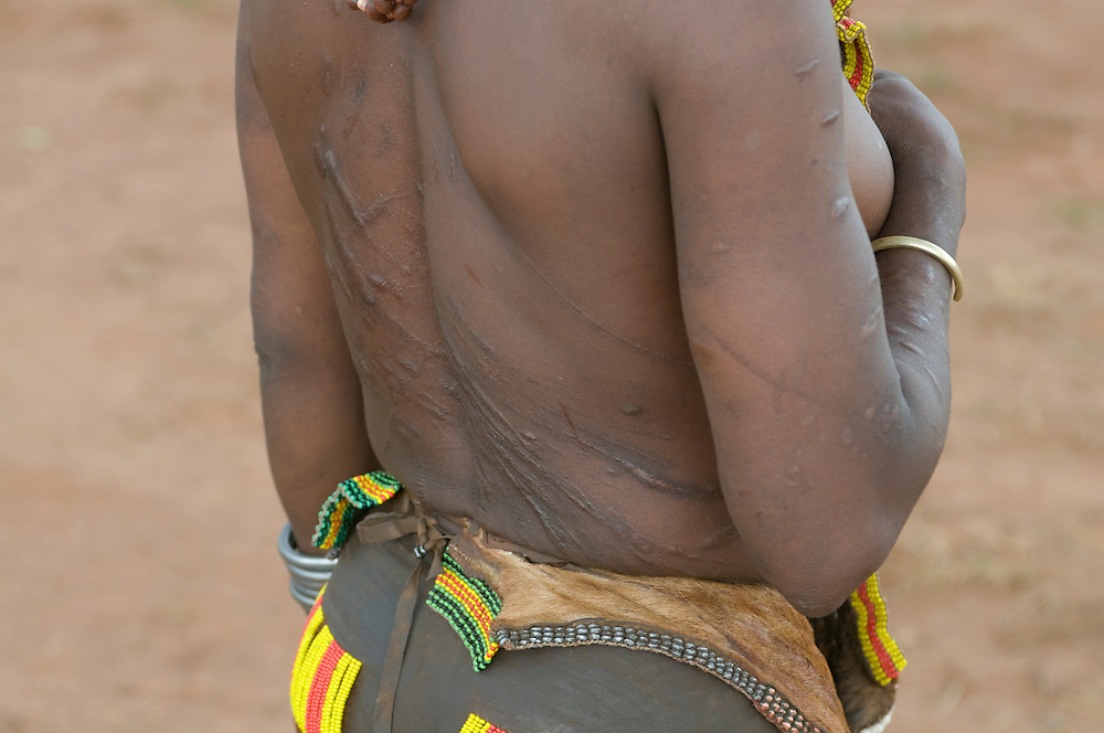 Bleeding scarfs on a Hamer woman after whipped at the jumping of the bull ceremony,Ethiopia,Africa