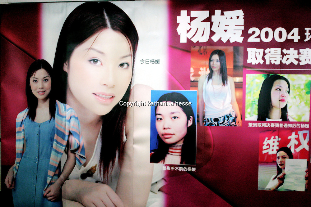 "BEIJING, 29.July 2004 : Yang Yuan, 19, an aspiring model who made headlines in May when she sued the organizer of a beauty pageant,is seen on porters that advertise plastic surgery in  the hospital where she went under the knife in Beijing, July 29, 2004, in China. ..Yang Yuan says she wanted to improve her career chances and therefore improved her looks artificially.When the organizer of the beauty contest found out, he banned her from competing and Yang's ""nightmare"" started. Yang has spent a fortune to pay her team of lawyers, organize press conferences to fight for her rights...These days, she's been obliged to give up her apartment as she slowly runs out of money and model jobs are not coming .In order to make a living, Yang agreed to act as an ""ambassador"" for the hospital where she had her plastic surgery...Plastic surgery gradually is becoming big business in China's capital.  Since this summer , hospitals  have been flooded with teenage patients ever since offers ""special summer reductions"" for students were made..  ..Whereas in Mao Zedong's China, even pigtails were seen as a sign of vanity (and had to be cut off) , nowadays, urban Chinese women seek about every means in order to distinguish themselves from the masses.  This year Beijing will organize the worl'd first beauty pageant for women had had plastic surgery..."
