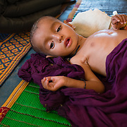 Aichata Walet Al Khalifa (6 months) soon after being admitted to the stabilisation centre for children suffering from severe acute malnutrition with medical complications at the Médecins Sans Frontières (MSF) health centre at the Mbera camp for Malian refugees in Mauritania on 3 March 2013. In addition to malnutrition, she has a high fever suggestive of an infection. She arrived at Mbera with her family a month prior.