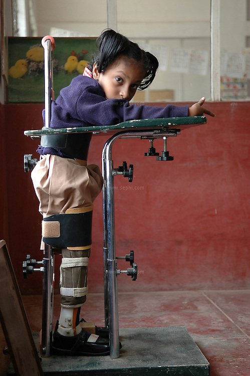 Rachel (6) suffers from Cerebral palsy in four limbs and cannot stand without help. Here she is strapped in the standing harness as a part of the physiotherapy plan at APD School in Bangalore.