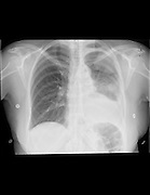 X-ray of a 65 year old female patient with Pleural effusion