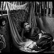 An ethnic Karen refugee, blinded in a  landmine explosion looks on from his simple bed at the Mae La refugee camp near Mae Sot, Thailand. (Photo by David Longstreath)