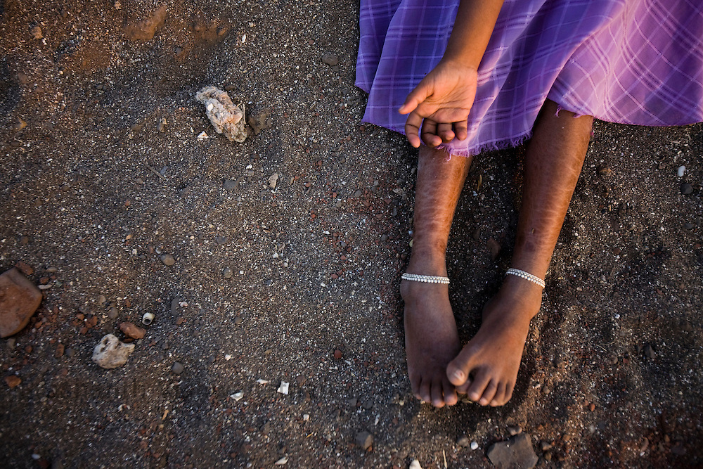 A Child  suffering from AIDS looks on in an orphanage in Ahmednagar Maharashtra. Photographer: Prashanth Vishwanathan