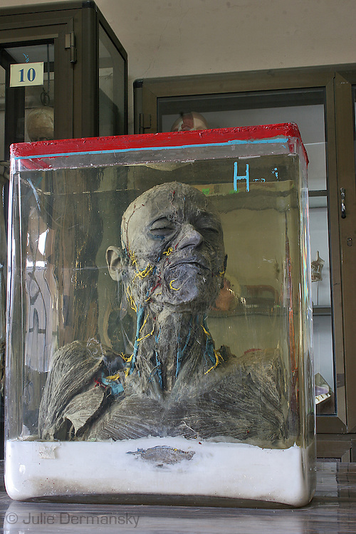 male specimnet at an anatomy museum in a hospital in Cairo used by medical students studying anatomy