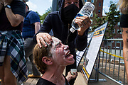 CHARLOTTESVILLE, USA - August 12: A woman has a special mixture and water poured in her eyes after being hit with pepper spray during clashes with between White Supremacists and counter protestors at Emancipation Park where the White Nationalists are protesting the removal of the Robert E. Lee monument in Charlottesville, Va., USA on August 12, 2017.