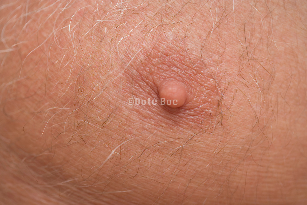 close up of nipple of a middle aged person