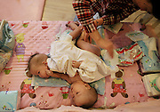 BEIJING, CHINA - DECEMBER 05:  China Out - Finland Out<br /> <br /> Conjoined twin baby girls connected at the abdomen abandoned in Chinese orphanage<br /> <br /> Conjoined twin baby girls have been abandoned at an orphanage in China after it is believed their parents could not afford to care for them. <br /> The girls, who are only about three months old, are connected by their abdomens and lie face-to-face. <br /> They are awaiting specialist treatment in Beijing where it is hoped they can be separated.<br /> he girls were handed to the organisation in Pingdingshan City, Henan Province, on August 11 and have since been named Zheng Hanjing and Zheng Hanwei. <br /> However, it is not known exactly how old they are.<br /> <br /> <br /> Hanjing and Hanwei have been transferred to a children's home in Beijing while they await a variety of tests to determine if they share any vital organs. <br /> They are being cared for by Mercy Corps children's home and staff member Deng Zhixin said that from 140 rescued children, this was their first case of conjoined twins. <br /> She told Chinese news site Fawan that she refused to 'judge' the twin's mother for abandoning them.<br /> <br /> <br /> She said it was likely their mother may have been forced to give up her children because of poverty and being unable to afford proper medical care. <br /> Deng said the pair are 'lively' and they are turned by staff every hour as they cannot roll by themselves. <br /> It is hoped the twins could be separated as early as this month but surgeons still need to determine what, if any, organs the babies are connected by.<br /> <br /> Next week the babies will be given a heart examination and abdominal ultrasounds to see if any organs are shared.  <br /> About one in every 200,000 live births worldwide result in conjoined twins.<br /> <br /> Around 40 to 60 per cent of conjoined twins arrive stillborn, and about 35 per cent survive only one day and long-term survival is between five and 25 per cent. <br /> The condition is three times more likely to occur among females than males and a third of conjoined twins are attached at the low
