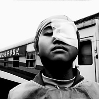 CHINA : Eye cataract surgery