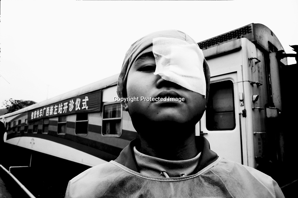 "CHONGZUO, GUANGXI- APRIL 10,2004:.a farmer girl stands outside the ""Lifetime Express"", a train that functions as a movable hospital, where a team of foreign voluntary doctors just removed her eye- cataract in Chongzuo, April 10, 2004, in China..In China, of the 9 million blind people, 4 million have been blinded by cataracts- a condition that's generally easy to cure. However, while more than 400,000 new cases develop on the mainland each year, only about 200,000 operations are carried out according to the World Health Organization (WHO). Operations can cost more than USD 500, an amount that's out of reach for many rural Chinese . In the area around Chongzuo, one of the poorest regions in China, the annual income only amounts to USD 120-250.."