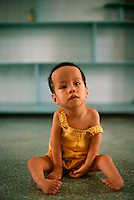 ca. May 1993, Ho Chi Minh City, Vietnam --- A Vietnamese infant born with twisted arms and legs in a maternity hospital in Ho Chi Minh City. The child's deformities are a result of the parent's exposure to Agent Orange. --- Image by © Owen Franken/CORBIS