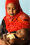 A woman holds her malnourished girl at the UNICEF-sponsored Mao therapeutic feeding center in the town of Mao, Kanem region, Chad on Monday February 13, 2012.