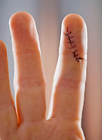 Closeup of an index finger with a stitched up cut.
