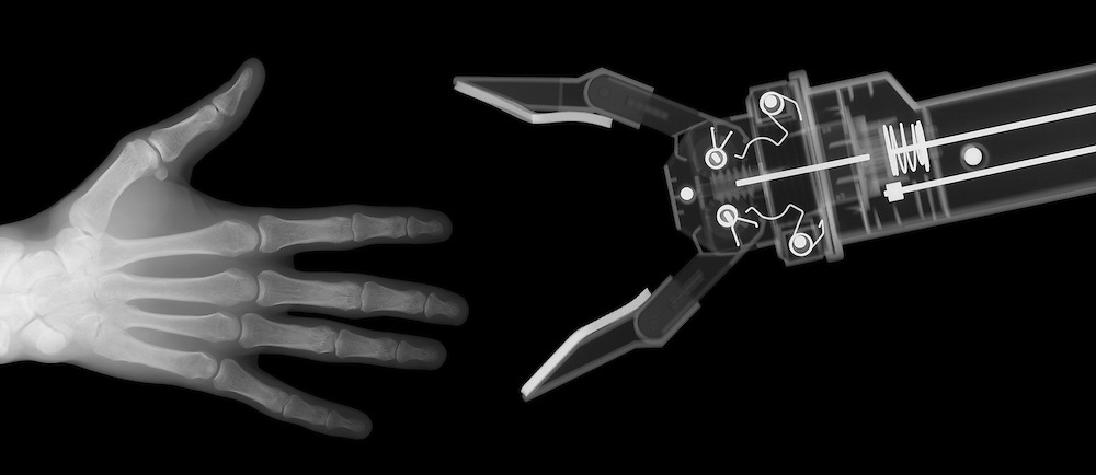 X-ray image of human and robot hands (white on black) by Jim Wehtje, specialist in x-ray art and design images.