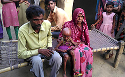 April 26, 2017 - Uttar Pradesh, India - Rupesh, 21, ..pictured with his mother Shanti Devi, 45, and father Rama Pati, 50, at his residence in Dharecha village of Hanumanganj district in Uttar Prdesh, India.....He suffers from a rare Hutchison Gilford Progeria Syndrome (a rare genetic condition that causes a child's body to age fast). Rupesh's body started showing abnormal changes as he grew older. His head became bigger while his body shrivelled. At just 21, he now looks like an old man.  (Credit Image: © Cover Asia Press/Cover Asia via ZUMA Press)