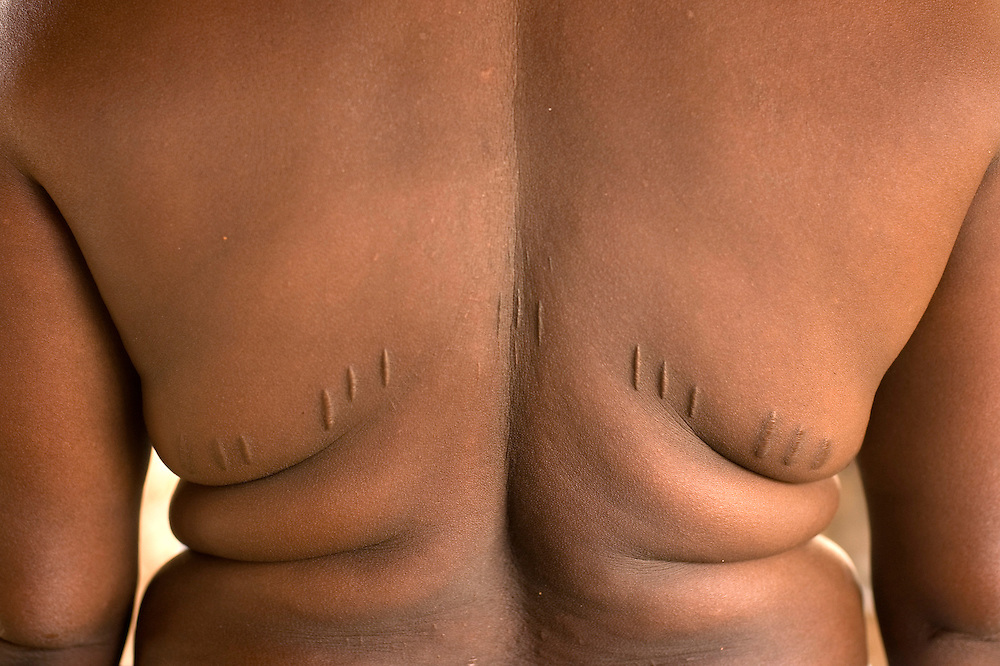 Benin February 24, 2008 Woman with scarifications on her back at the village of Kpataba. Scarification is used as a form of initiation into adulthood, beauty and a sign of a village, tribe, and clan.