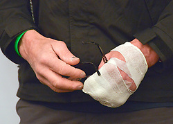 """© Licensed to London News Pictures. 04/03/2013. Heathrow, UK SIR RANULPH FIENNES' left hand covered in a bandage. Explorer Sir Ranulph Fiennes returns to the UK after pulling out of """"The Coldest Journey"""" Expedition to the Antarctic at winter due to frostbite. The Coldest Journey Press Conference today 4th March 2013 at Heathrow Airport. Photo credit : Stephen Simpson/LNP"""