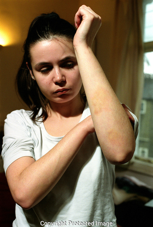 Young teenage addict showing her bruises from having been beaten up.