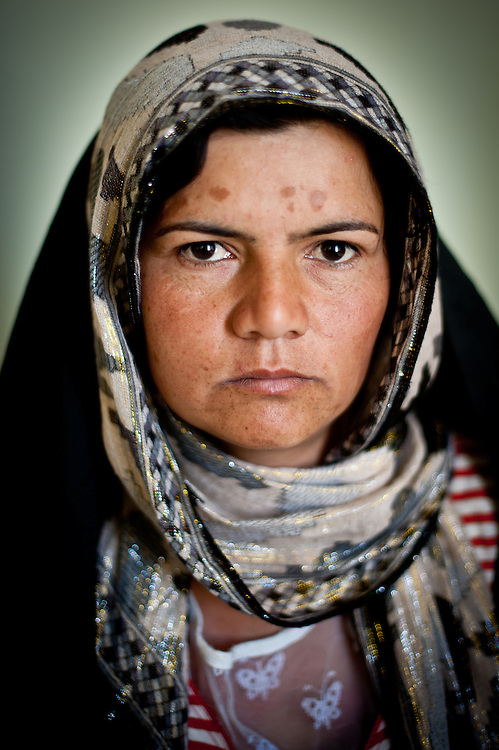 Jan Bibi, a survivor of self-immolation. Jan Bibi set herself on fire to protest domestic abuse by her drug-addicted husband.