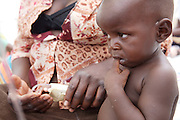 One year old Tanya Munzhelele is recovering with the aid of intravenous fluids at Musina Hospital from Cholera. He lives in the nearby village of Madimbo...There were 664 confirmed cases of Cholera at the border town of Musina in South Africa. Officially the outbreak is under control, with the confirmed number of deaths from Cholera at 8 people. 51 of those admitted to the hospital have been under the age of 5 years old...Limpopo Health department has been working closely with IRC, Save the Children (UK), WHO and MSF to bring the outbreak under control through treatment and education programs in bordering villages and at the main IDP camp at Musina Showground..