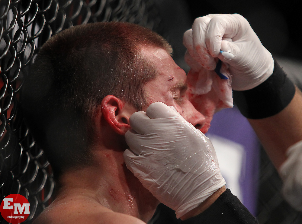 Atlanta, GA - April 21, 2012: Stephen Thompson has a cut tended to during his bout against Matt Brown at UFC 145 at the Phillips Arena in Atlanta, Georgia.