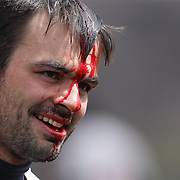 A bleeding West Pontomac player  during the Binghamton Devils (red) V West Pontomac rugby match during the Four Leaf 15's Club Rugby Tournament at Randall's Island New York. The tournament included 70 teams in 6 divisions, organized by the New York City Village Lions RFC. Randall's Island, New York, USA. 23rd March. Photo Tim Clayton