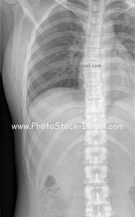 X-ray of a normal female spine and rib cage