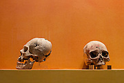 Human skulls from sacrifices found in the ruins of Monte Albán pre-Columbian archaeological site in the Santa Cruz Xoxocotlán, Oaxaca, Mexico.