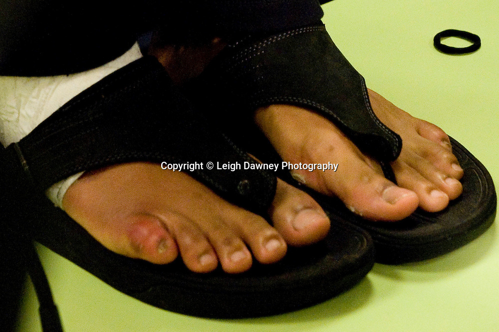 David Haye claiming at the press conference that he had a broken toe prior to the fight against Wladimir Klitscko . World Heavyweight Title fight at Imtech Arena, Hamburg, Germany. 03.07.11.  Photo credit: Leigh Dawney 2011