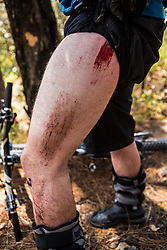 Road Rash<br /> Despite his skills, Matt Erbentraut exhibits what an unsteady surface can do to the human leg