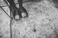 The physically deformed feet of a young student at the Danang Association of Victims of Agent Orange (DAVA) in Danang, Vietnam, on August 8, 2012.