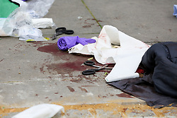 © Licensed to London News Pictures. 31/03/2019. London, UK. Blood stained clothing at the crime scene on Fore Street in Edmonton, north London where a person was stabbed just after 9.30am this morning. According to the The victim was transferred to a hospital by Air Ambulance and his condition is unknown. Photo credit: Dinendra Haria/