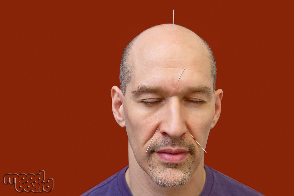 Close-up of a mature man with acupuncture needles on face