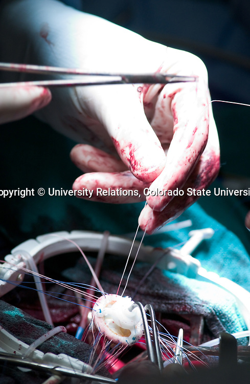 Orton Open Heart Surgery