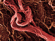 Scanning electron microscope (SEM) image of human muscle tissue collected from an 18 year old male during tooth surgery. The  connective tissue I  collagen fibers and red blood cells . Magnification x9570 when printed 10 cm wide.