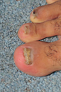 Fungal infection. View of the broken, discoloured and poorly growing nail of toes infected with fungus (tinea unguium, or onychomycosis). Tineal infections are caused by a group of fungi called the dermatophytes. Tineal infections may be acquired from an infected person, an animal, from soil, shower floors or from household objects such as chairs or carpets. Tinea is usually treated with antifungal drugs in creams or ointments, however for widespread infections the drug is taken in tablet form. Treatment must be continued well after the symptoms have subsided to totally eradicate the fungi and to prevent a recurrence.