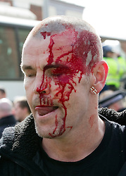 """© under license to London News Pictures. 02/04/2011: An EDL supporter is injured following a rally in Blackburn. Credit should read """"Joel Goodman/London News Pictures""""."""