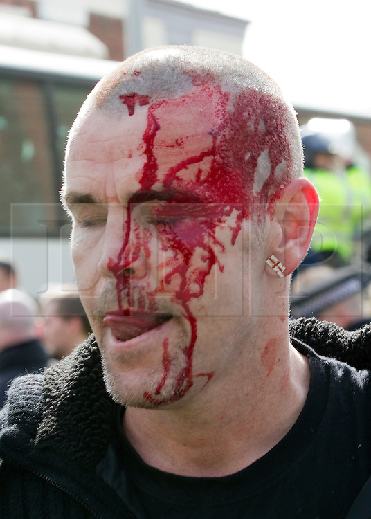 "© under license to London News Pictures. 02/04/2011: An EDL supporter is injured following a rally in Blackburn. Credit should read ""Joel Goodman/London News Pictures""."