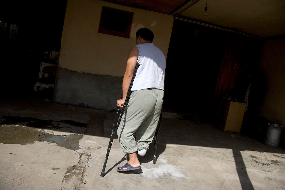 Elmuraz Qasimov, a former soldier in the Azerbaijani army, is home with his family doing rehabilitation after losing his right foot to a landmine near Fizuli on May 21, 2006.